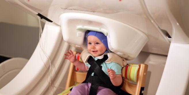 Resultado de imagen de escáner cerebral en bebés